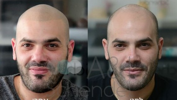 Hair Simulation Bafore and After